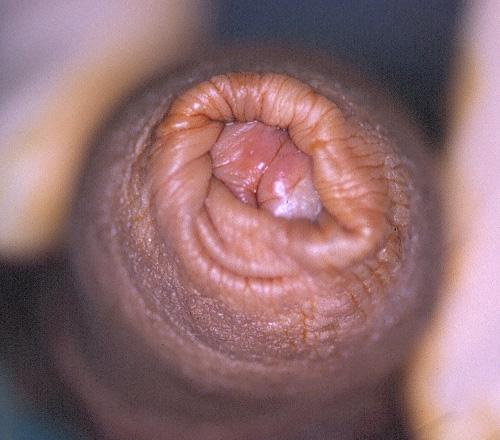 Lesiones del pene Urologa Peruana Dr Susanbar